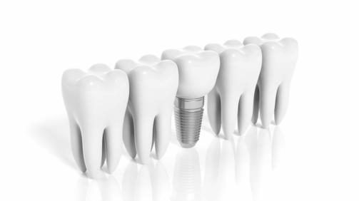 implantes post extracción