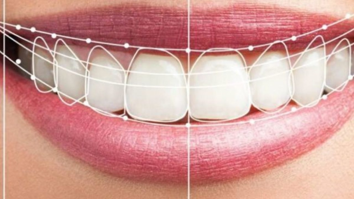 estética implantes dentales
