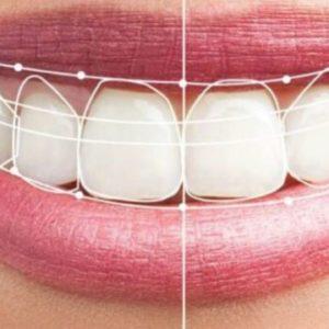 estética implantes dentales