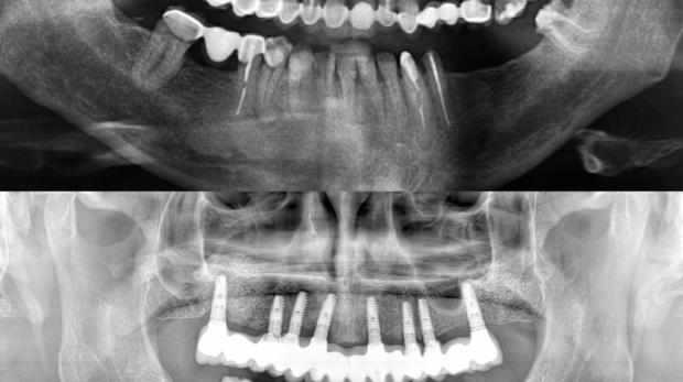 cirugía de implantes dentales