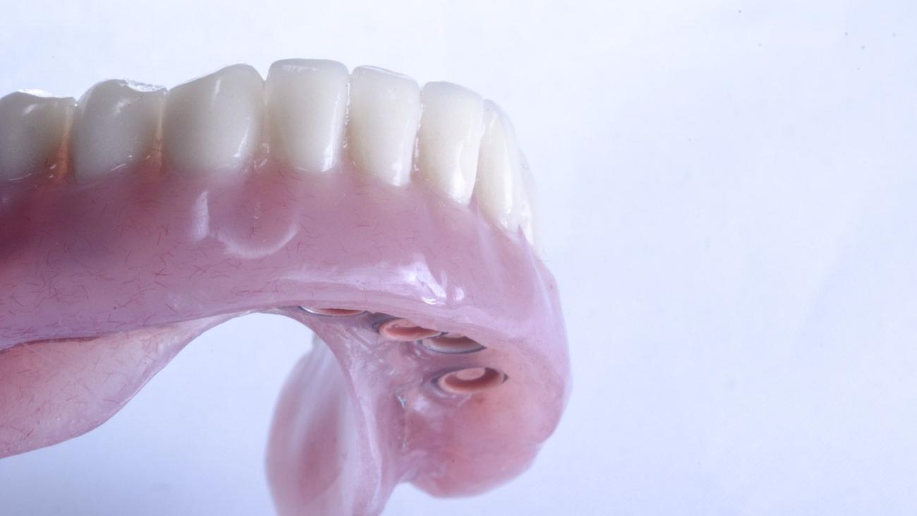 sobredentadura sobre implantes