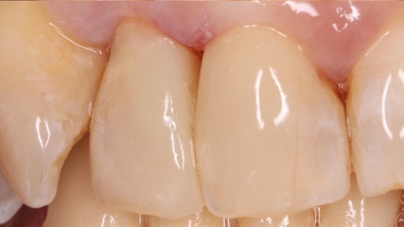 mejorar dientes carillas composite