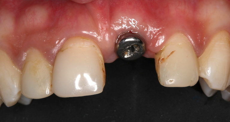 implantes dentales madrid antes