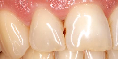 implantes dentales caso a