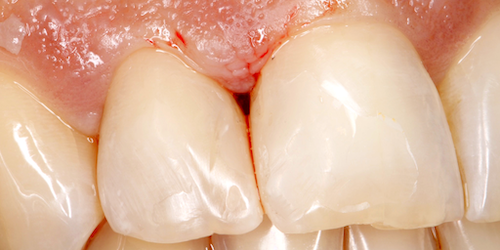 implantes dentales caso b