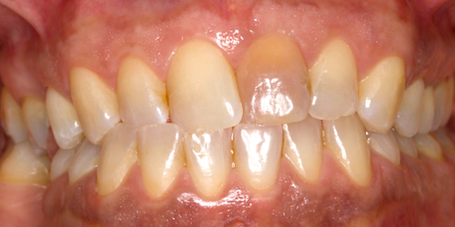 implantes dentales madrid caso 1