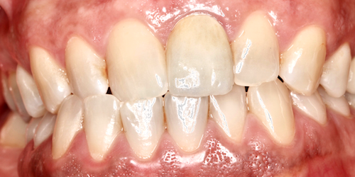 implantes dentales madrid caso 2