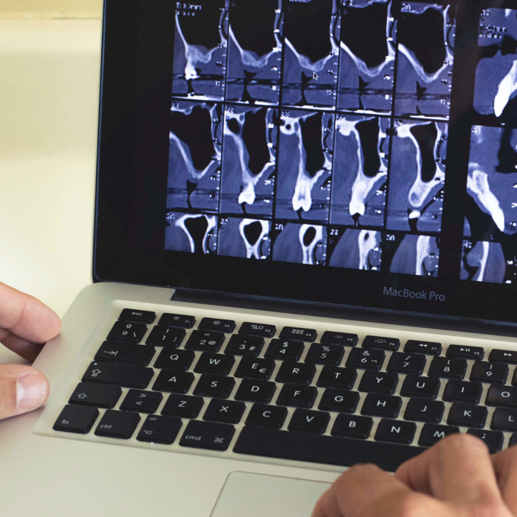 implantes-dentales-madrid-cita online