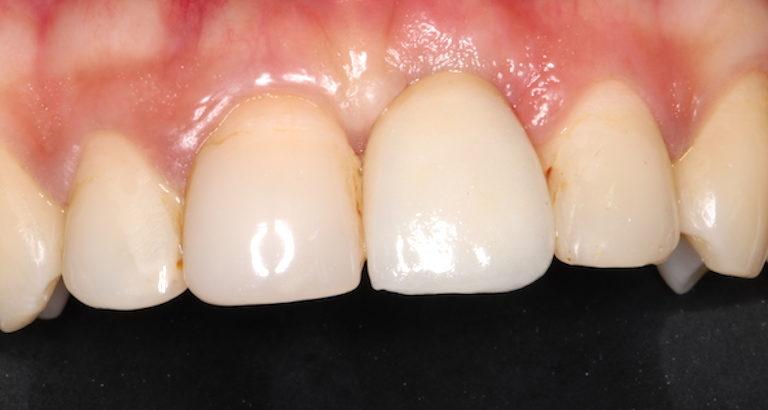 implantes dentales madrid después