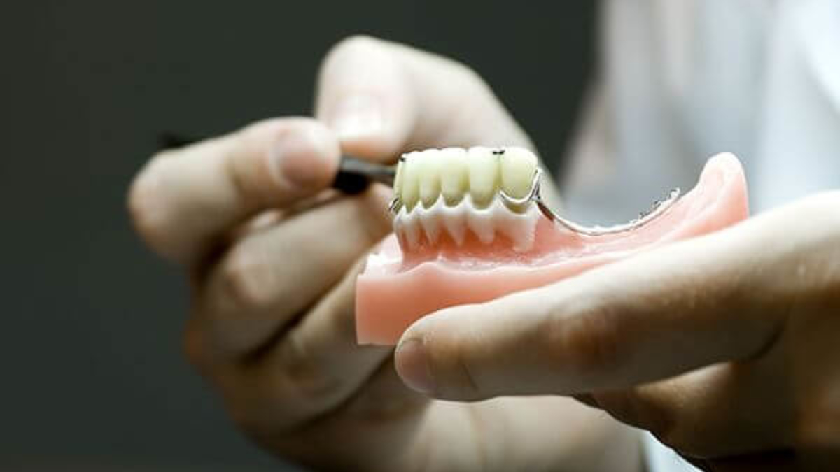 prótesis dental alternativa a implantes (1)